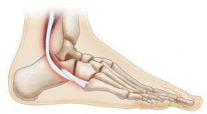 peroneal tendon injuries diagnosis treatment mammoth lakes ca