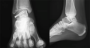 The Snowboarder's Fracture